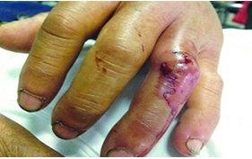 毒蛇咬伤的排毒和治疗方法(基本功)